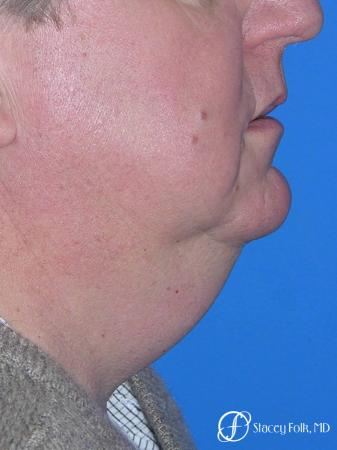 Denver Facial Rejuvenation Face lift, and Fat injections 7157 - Before and After Image 2