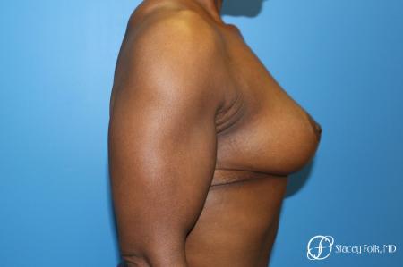 Denver Breast Lift - Mastopexy 7509 -  After Image 3
