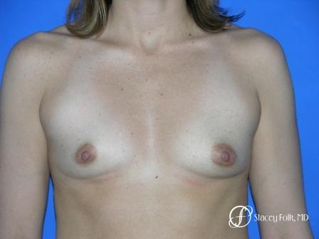 Denver Breast Augmentation 960 - Before Image