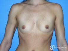 Denver Breast Augmentation 8202 - Before Image