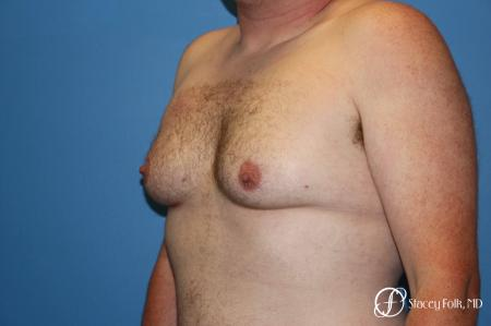 Denver FTM Female to Male Top Surgery 7109 - Before Image 2