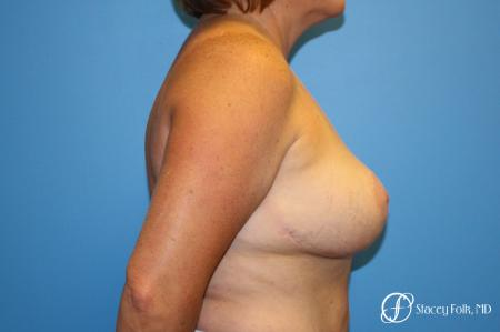 Breast Revision - Removal of Implant, Fat Transfer, Breast Lift (Mastopexy) - Before and After Image 3