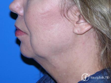 Denver Facial Rejuvenation Facelift, Fat Transfer, and Laser Resurfacing 8513 - Before Image 1