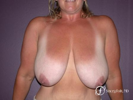 Denver Breast Reduction 45 - Before Image 1