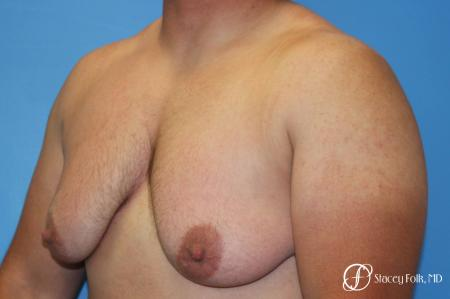 Denver FTM Female to male top surgery 5252 - Before Image 4