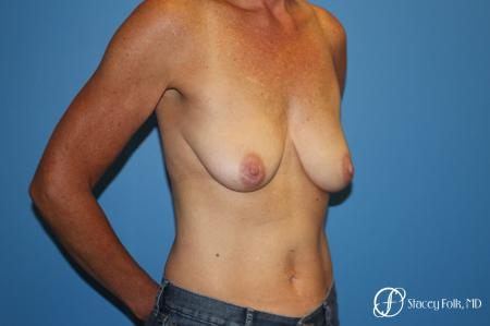 Breast Augmentation with Breast Lift (Augmentation/Mastopexy) - Before Image 2