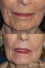 Laser Skin Resurfacing - Before Image