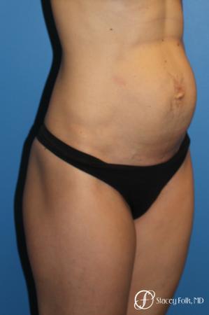 Denver Tummy Tuck (Abdominoplasty) 11239 - Before Image 4