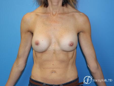 Denver Breast Revision 8504 - Before Image 1