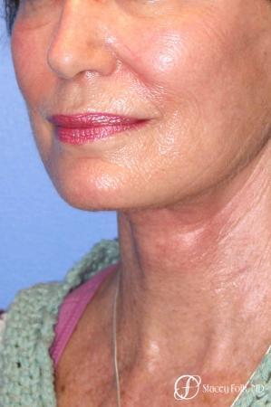 Denver Facial Rejuvenation Face Lift, Fat Injections, Laser Resurfacing 7116 -  After Image 2