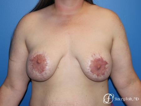 Breast Lift (Mastopexy) - Before Image 1