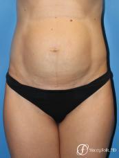 Denver Tummy Tuck (Abdominoplasty) 11239 - Before Image