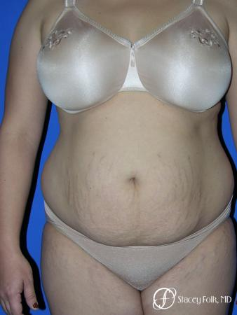 Denver Mommy makeover, breast reduction, abdominoplasty and liposuction 5353 - Before Image