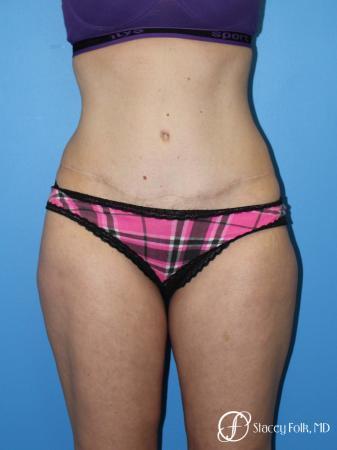 Denver Tummy Tuck (Abdominoplasty) 4782 -  After Image 1