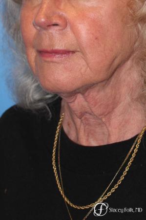 Denver Facial Rejuvenation Face lift, Fat Injections, and Laser Resurfacing 7131 - Before Image 2