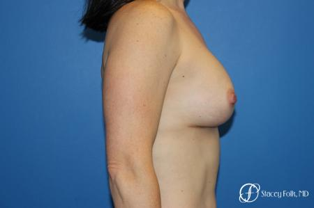 Breast augmentation with Natrelle Inspira breast implants -  After Image 3
