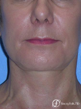 Denver Facial Rejuvenation Face Lift and Fat Injections 7117 -  After Image 3