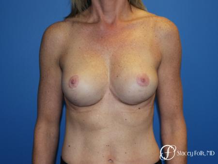 Breast Augmentation with Breast Lift (Augmentation/Mastopexy) - After Image