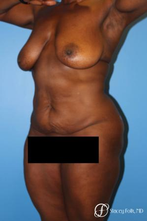 Denver Breast Lift - Mastopexy, and Tummy Tuck - Abdominoplasty 7512 - Before Image 2