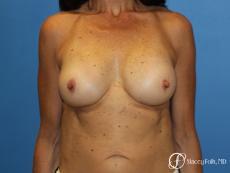 Denver Breast Revision 8272 - After Image
