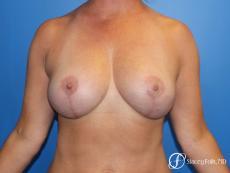 Denver Breast Lift 10252 - After Image