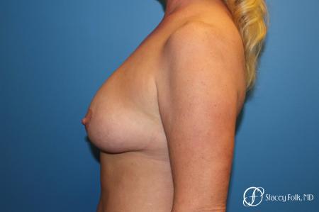 Denver Breast Lift 10252 - Before Image 2