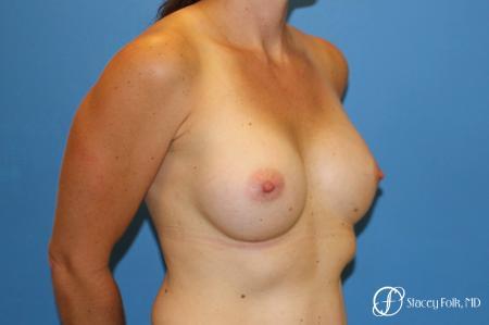 Denver Breast Augmentation 6611 -  After Image 2