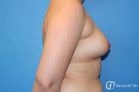 Denver FTM Top Surgery 5088 - Before and After Image 3