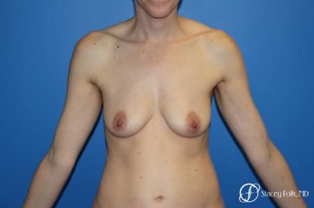 Fat Transfer Breast Lift: Patient 1 - Before Image