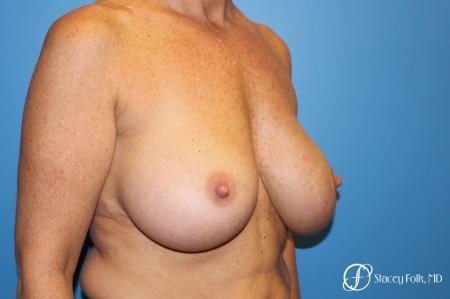Denver Breast Revision 8543 - Before Image 2