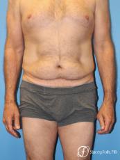 Denver Body Lift - Belt Lipectomy 8570 - Before Image