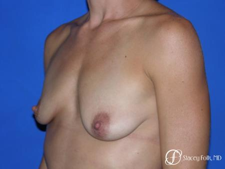 Denver Breast augmentation and breast lift (Mastopexy) 10091 - Before Image 3