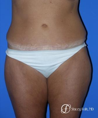 Denver Tummy Tuck 18 -  After Image 1