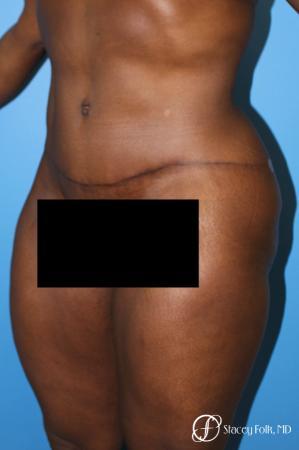 Denver Tummy Tuck - Abdominoplasty 7514 -  After Image 2