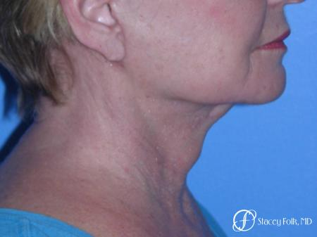 Denver Facial Rejuvenation Face Lift, Fat Injections, and Laser Resurfacing 7120 - After Image