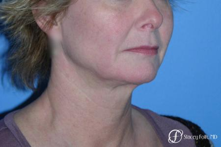 Denver Facial Rejuvenation Face Lift 7121 - Before and After Image 4