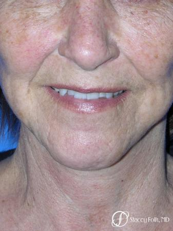 Denver Facial Rejuvenation Face Lift and Fat Injections 7129 -  After Image 3