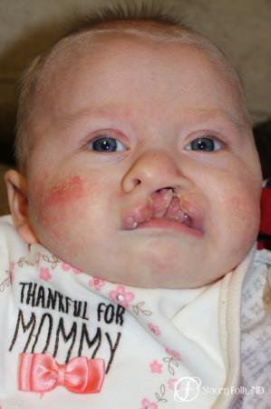 Denver Cleft lip and palate repair 9363 - Before Image