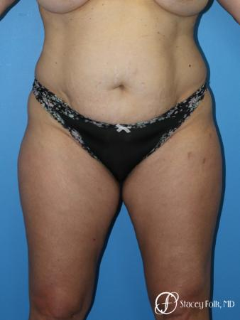 Tummy Tuck (Abdominoplasty) and Liposuction - Before Image