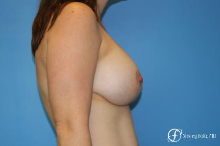Denver Breast Lift (Mastopexy) with agumentation 9093 -  After Image 3