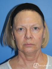 Facial Rejuvenation: Patient 1 - Before Image