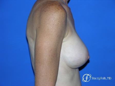 Denver Breast Augmentation 12 -  After Image 3