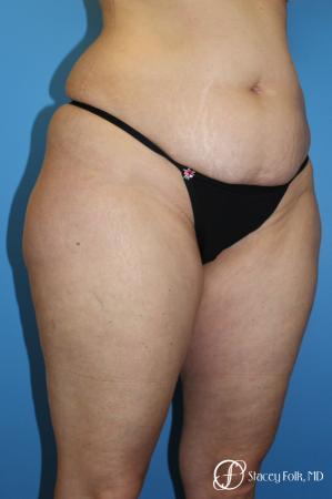 Tummy Tuck - Abdominoplasty - Before Image 2
