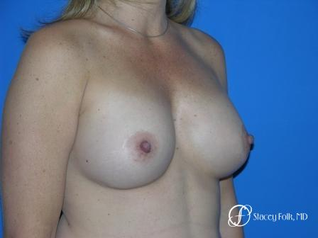 Denver Breast Augmentation 959 -  After Image 2