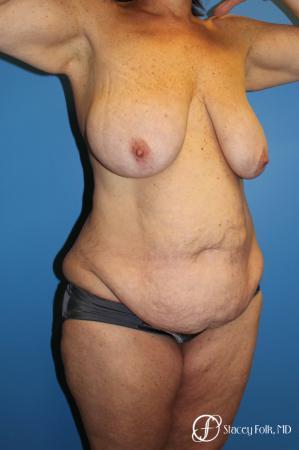 Denver Mommy Makeover Belt lipectomy, liposuction, mastopexy 5938 - Before Image 2