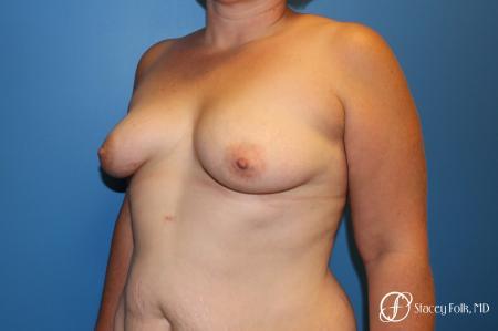 Denver Breast Augmentation Mastopexy 8507 - Before Image 2