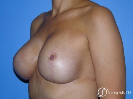 Denver Breast Revision 10094 - Before Image 2