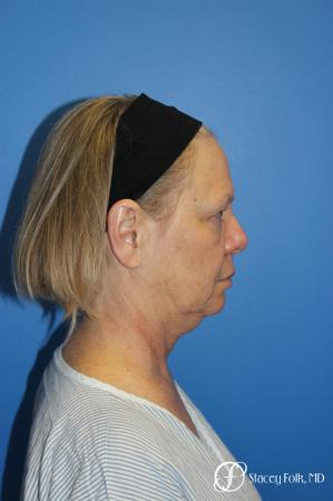 Facial Rejuvenation: Patient 1 - Before and After Image 3