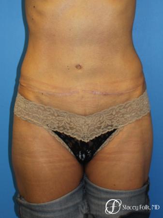 Denver Tummy Tuck Abdominoplasty 5609 -  After Image 1