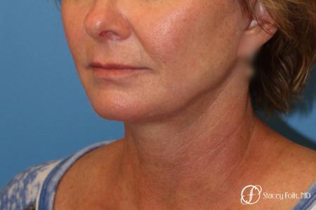 Denver Facial Rejuvenation Face Lift 7121 -  After Image 2